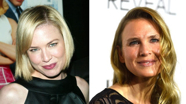 Renee Zellweger And 7 Other Stars Who Dramatically Changed