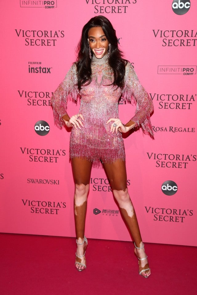 Winnie Harlow Victoria's Secret After Party