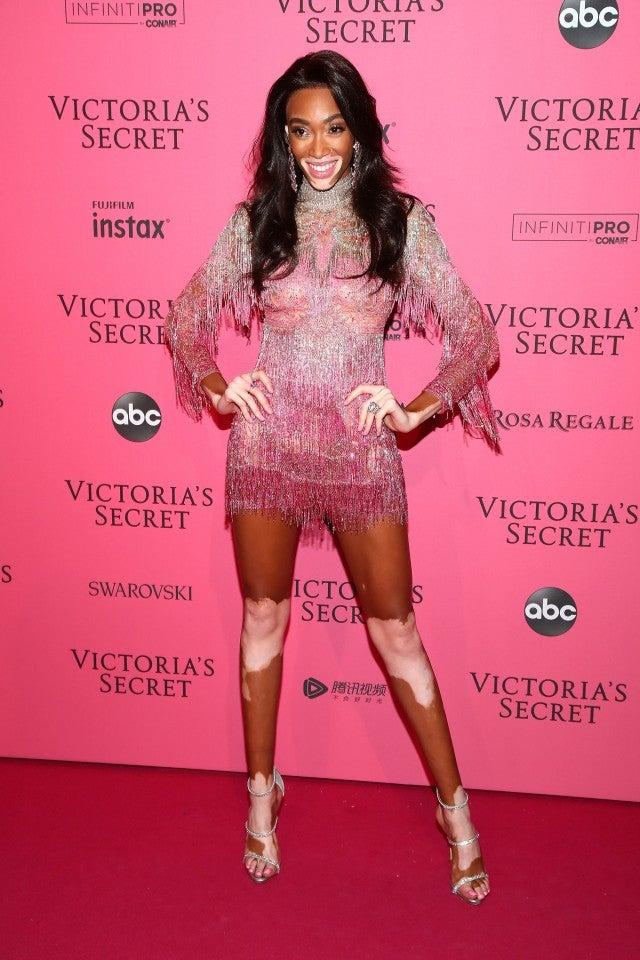 Winnie Harlow Victoria's Secret After Occasion
