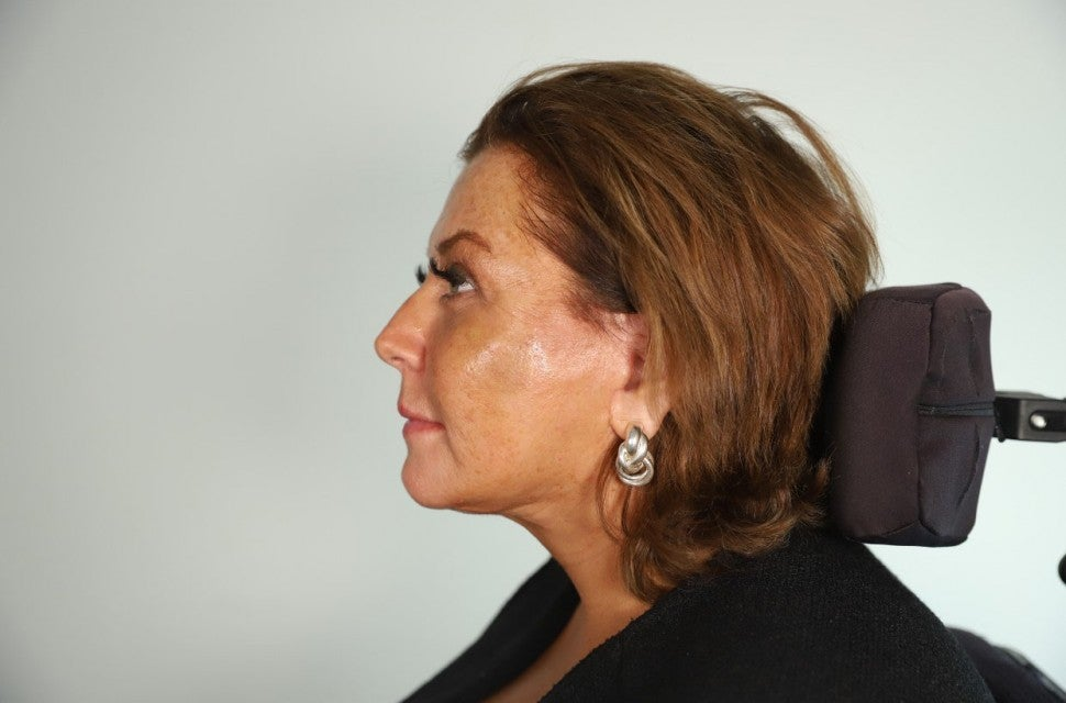 Abby Lee Miller after her facelift