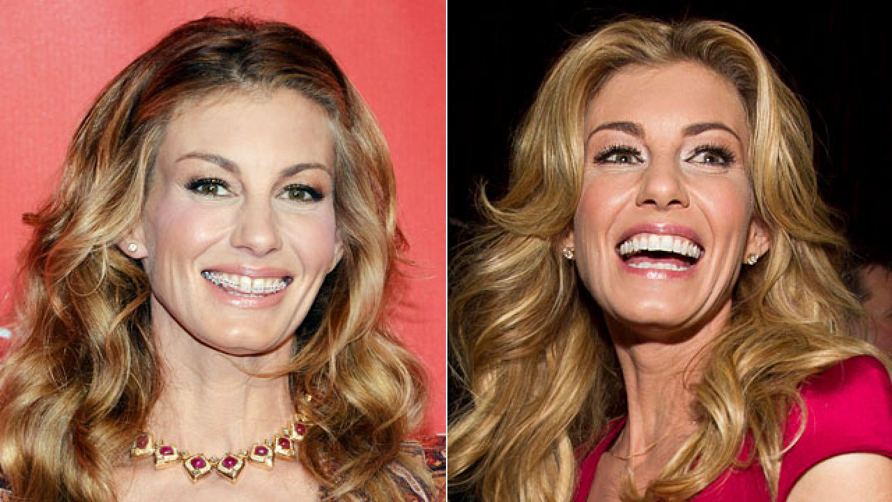 What Happened To Faith Hill S Teeth Entertainment Tonight