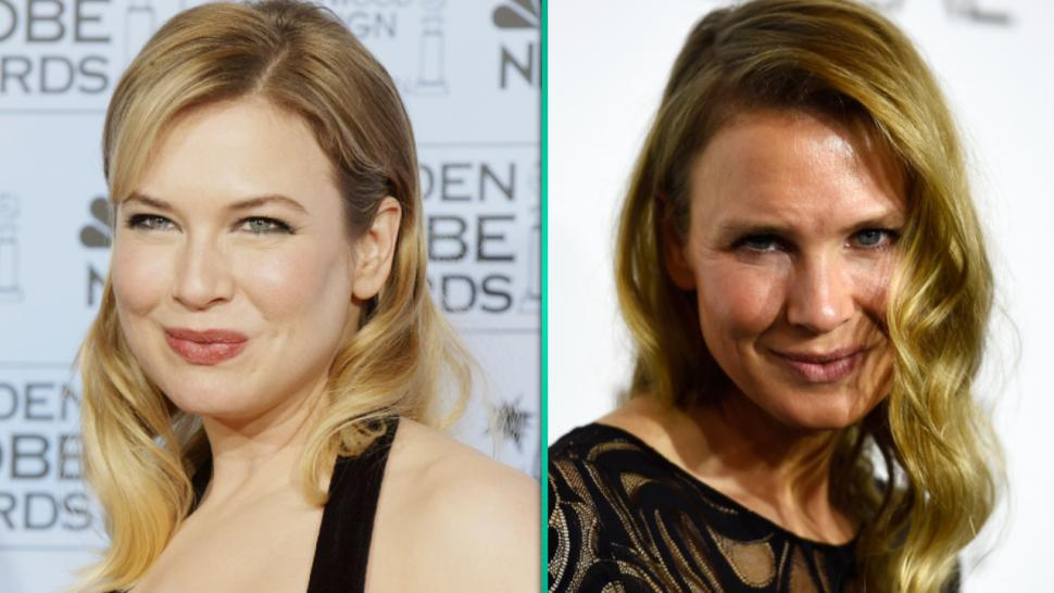 Here's What Renee Zellweger Told ET About Plastic Surgery ...