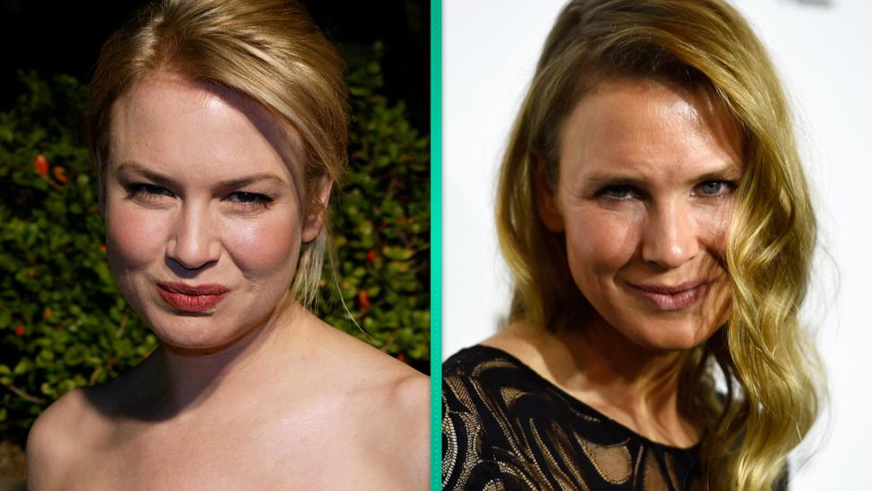 What Did Renee Zellweger Do To Her Face Plastic Surgeon