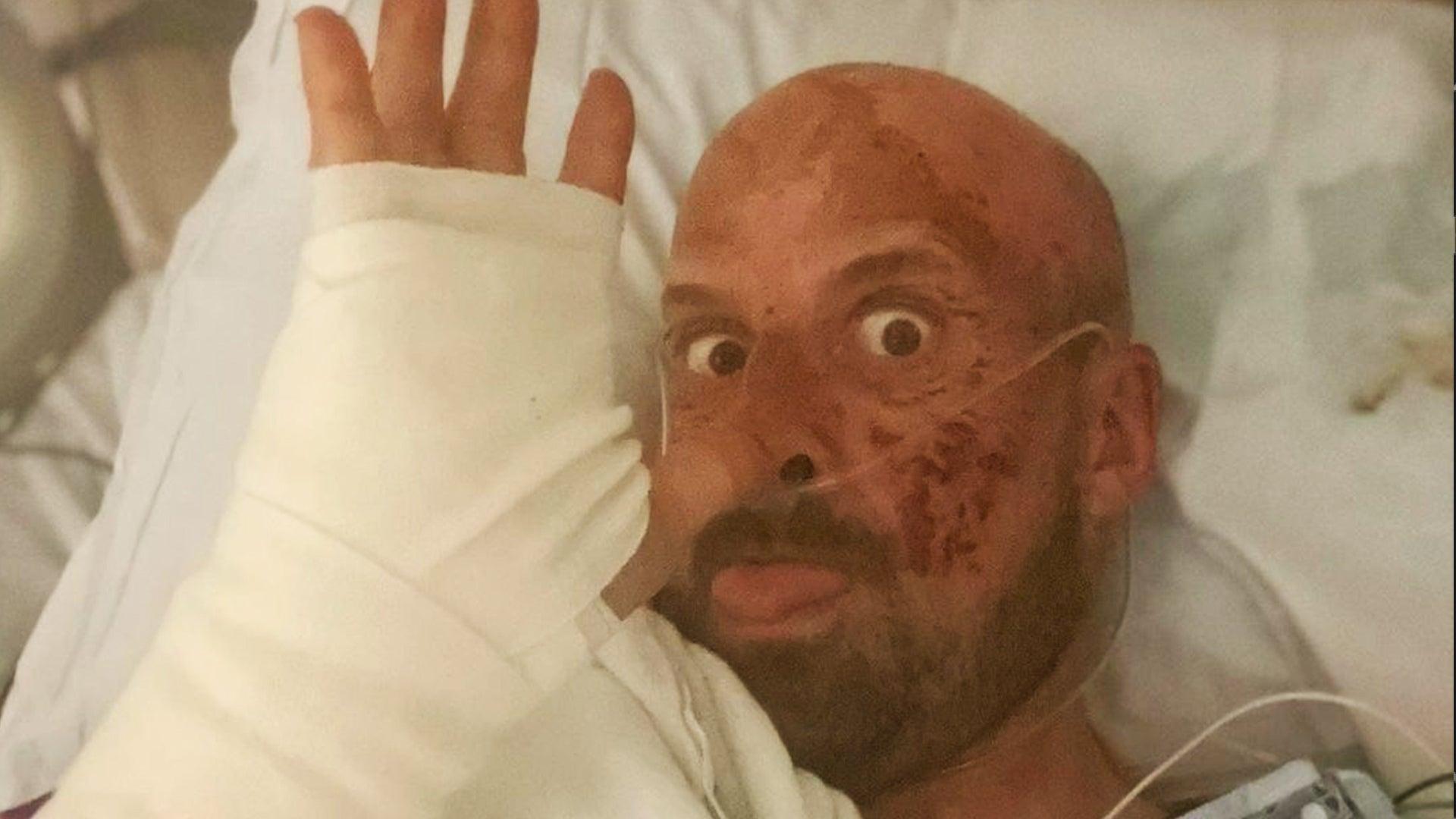 'America's Got Talent: Extreme' Contestant Jonathan Goodwin Shares Hospital Selfie